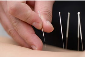 Acupuncture for snoring